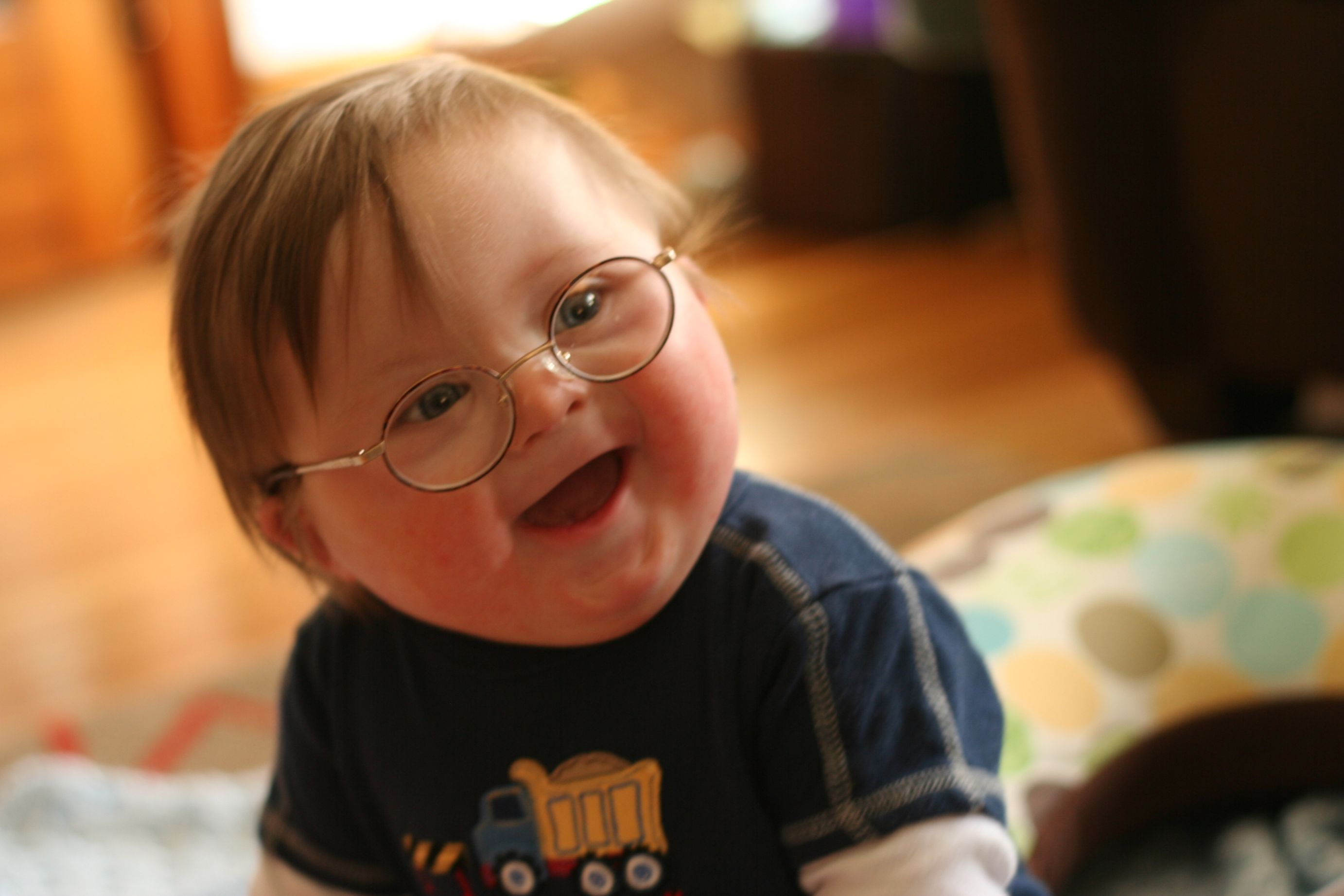 down syndrome trisomy 21 Abstract even though the molecular mechanisms underlying the down syndrome (ds) phenotypes remain obscure, the characterization of.